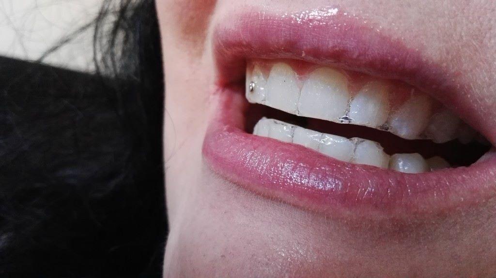 Kuva liuskoista hampaiden päällä
